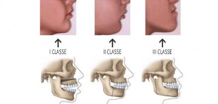 Malocclusione dentale: cause, conseguenze e soluzioni