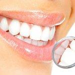 Denti bianchi: igiene orale e sbiancamento
