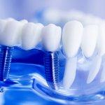 Denti fissi: significato e tipologie