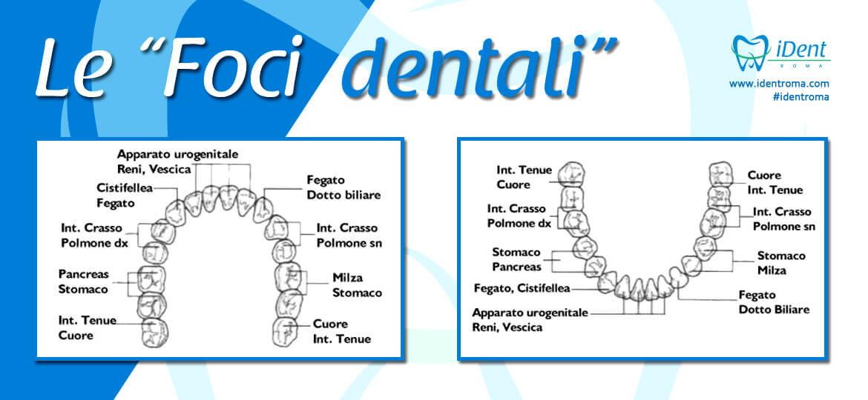 Le foci dentali: problema, cause e cure