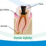 Ascesso dentale: sintomi e cure