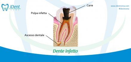Ascesso dentale: sintomi e cure - iDent Roma