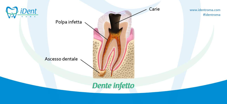 Ascesso dentale: sintomi e cure - iDent Roma