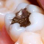 La rimozione protetta delle otturazioni in amalgama dentale