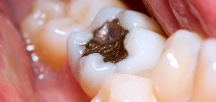 La rimozione protetta delle otturazioni in amalgama dentale - iDent Roma
