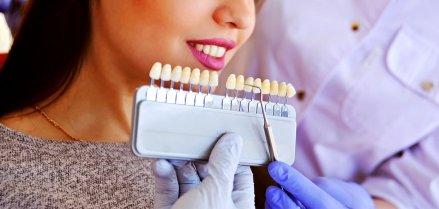 iDent Roma - Le faccette dentali: benefici e controindicazioni