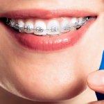 Pulire l'apparecchio dentale: consigli per una corretta igiene