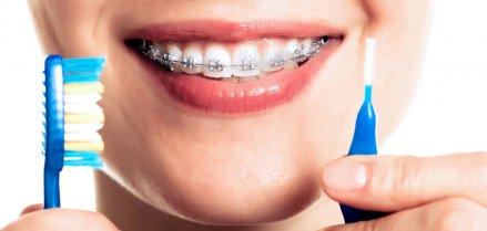 Come pulire l'apparecchio dentale: consigli per una corretta igiene