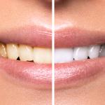 Macchie sui denti: tipologie e rimedi