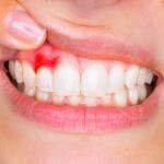Sanguinamento gengive: quali sono le cause e cosa fare?