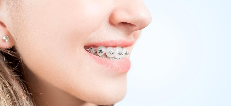 Denti sporgenti: cosa fare? Cause e cure per la retrognazia - iDent Roma