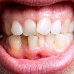 Denti storti: quali sono le cause ed i rimedi?