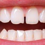 Diastema: cause e rimedi per lo spazio tra i denti