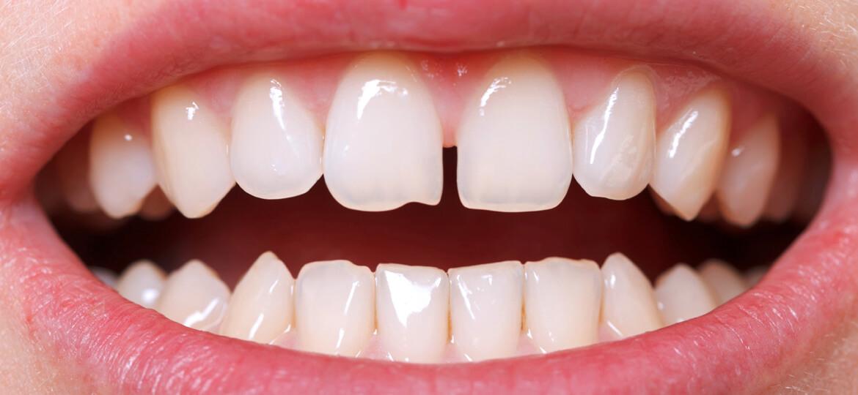 Diastema: cause e rimedi per lo spazio tra i denti - iDent Roma