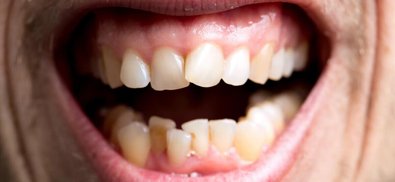 Affollamento dentale: quali sono le cause e le cure?