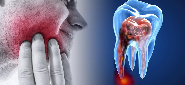 Devitalizzazione di un dente: come avviene e quali sono le cause e i rischi?
