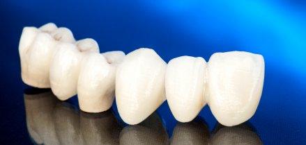 Corona Dentale - iDent Roma