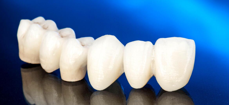 Corona dentale: cos'è e quando è necessario utilizzarla?