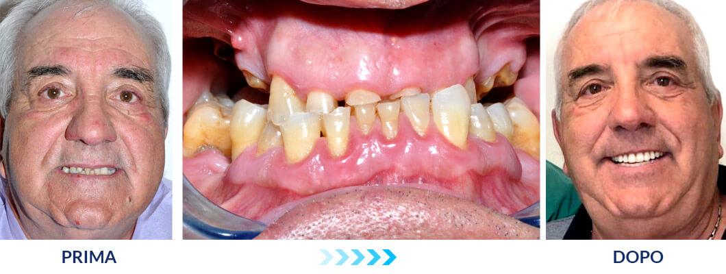 Impianti dentali in 6 ore - iDent Roma