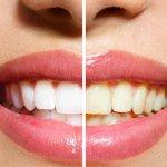 Come sbiancare i denti gialli?