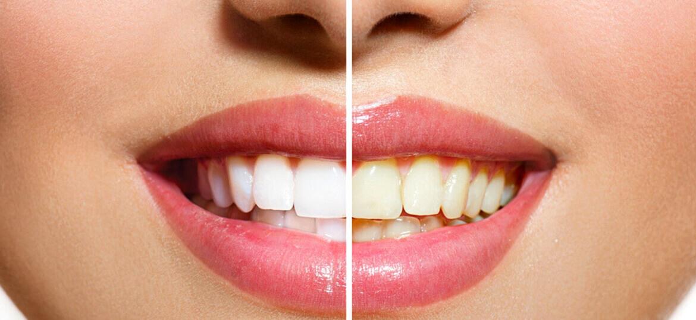 Come sbiancare i denti gialli