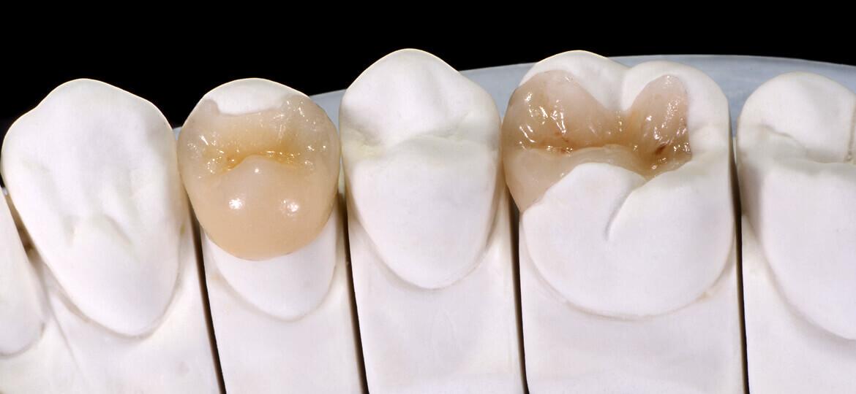 Intarsio dentale: cos'è e quali sono i vantaggi
