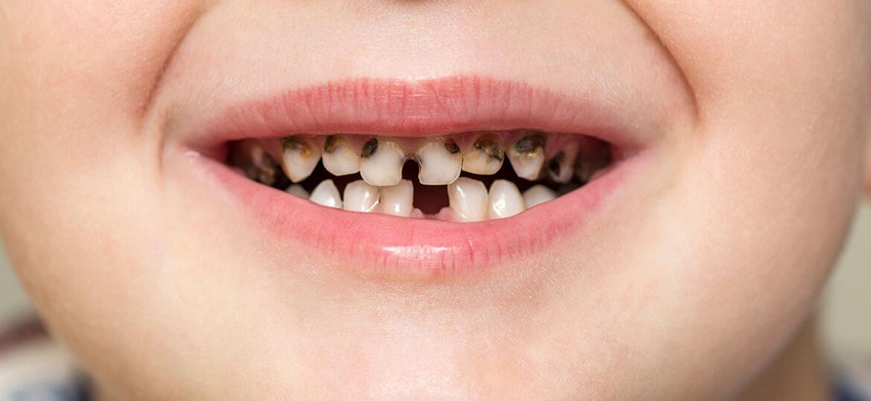 Carie denti da latte, cosa fare?