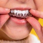 Bite dentale: a cosa serve e quando utilizzarlo