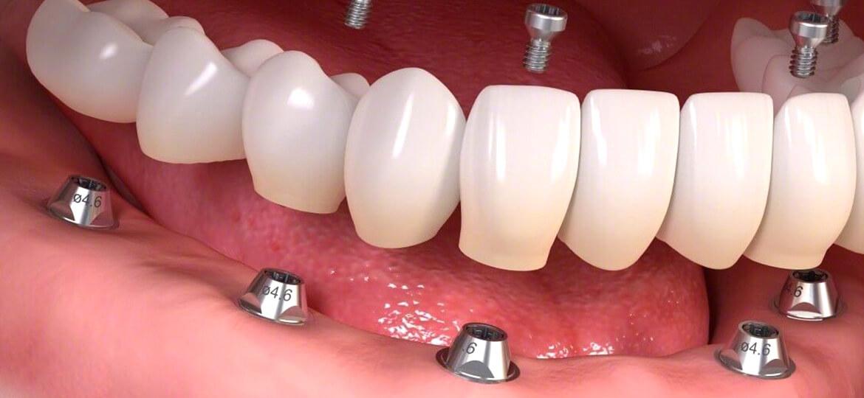 Impianti dentali a carico immediato: come funzionano?