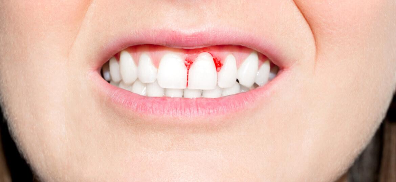 Parodontite: quali sono i sintomi e come curarla?