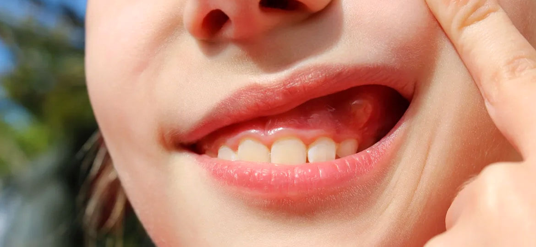 Ascesso dentale: sintomi e rimedi naturali