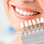 Faccette dentali: cosa sono e quanto costano?